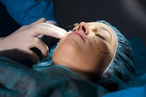 Lifting frontal endoscopique